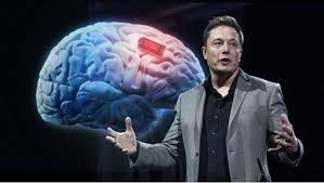 Chip que permitiría escuchar música directamente del cerebro; por Elon Musk